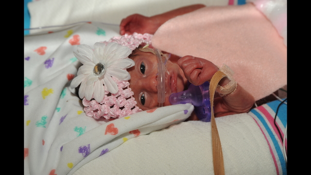 Group donates Halloween costumes to preemie babies at West