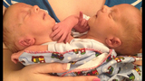 Photos: Indiana conjoined twins - (4/4)