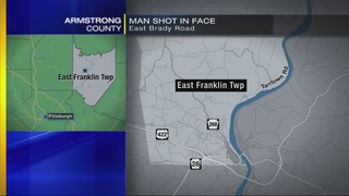 Man shot in face during attempted robbery; 2 men sought
