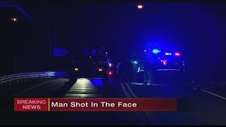 Man shot in face, homicide detectives investigating