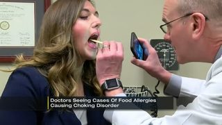 Doctors seeing cases of food allergies causing choking disorder