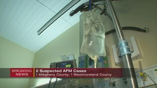 Two more suspected cases of AFM in our area, six confirmed