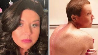 VIDEO: Abby Lee Miller posts pictures of spinal surgery scars