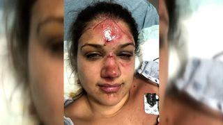 Texas woman beaten in fight over innertube